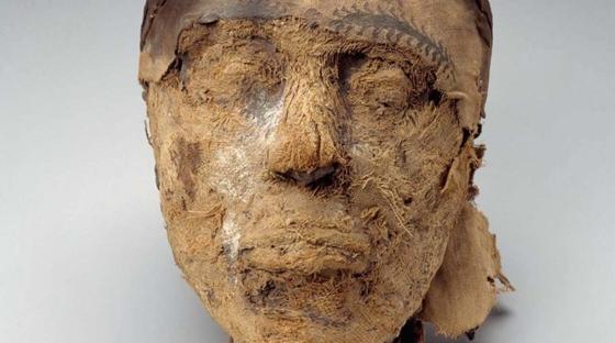 Ki segített múmia a prosztatitisből